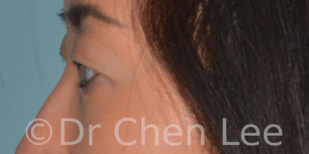 Asian blepharoplasty before after eyelid surgery left side photo #03