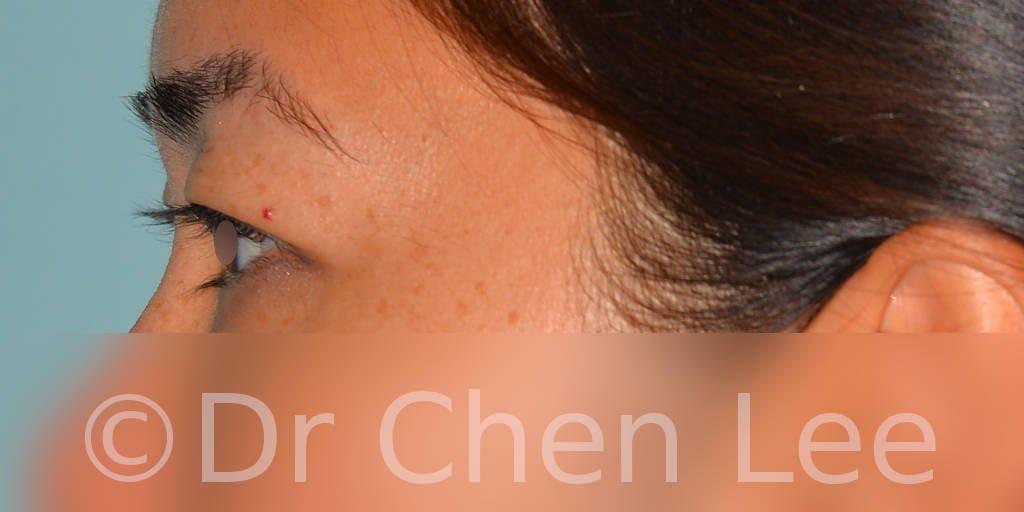 Asian blepharoplasty before after eyelid surgery left side photo #04