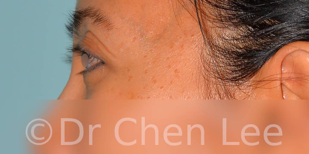 Asian blepharoplasty before after eyelid surgery left side photo #05