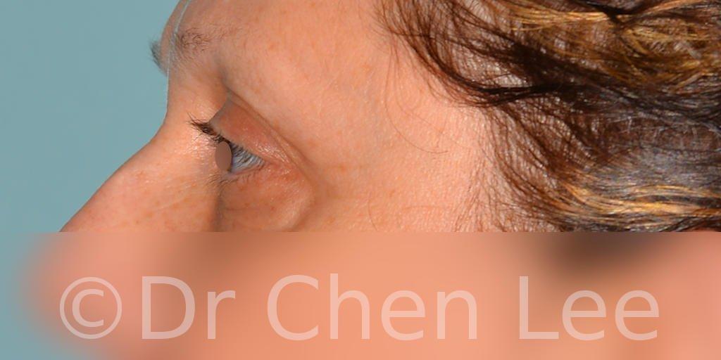 Blepharoplasty before after eyelid surgery left side photo #08