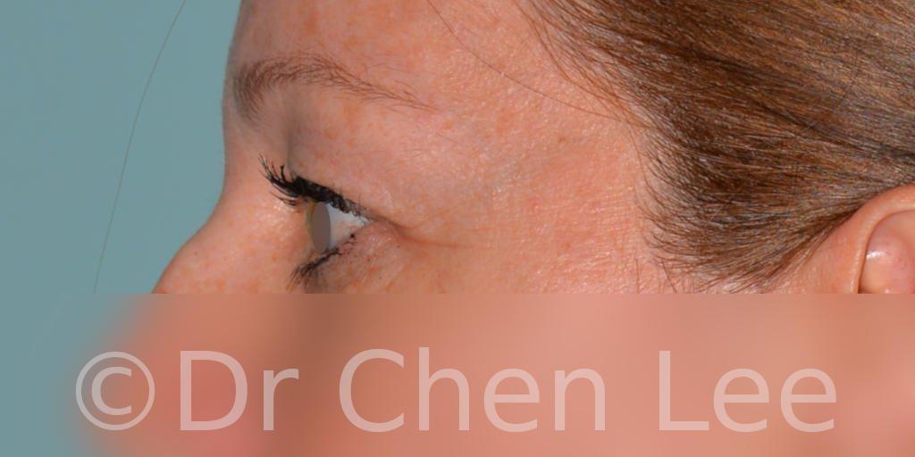 Blepharoplasty before after eyelid surgery left side photo #044