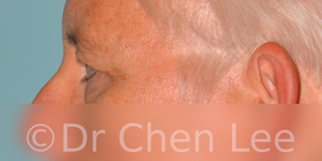Blepharoplasty before after eyelid surgery left side photo #03