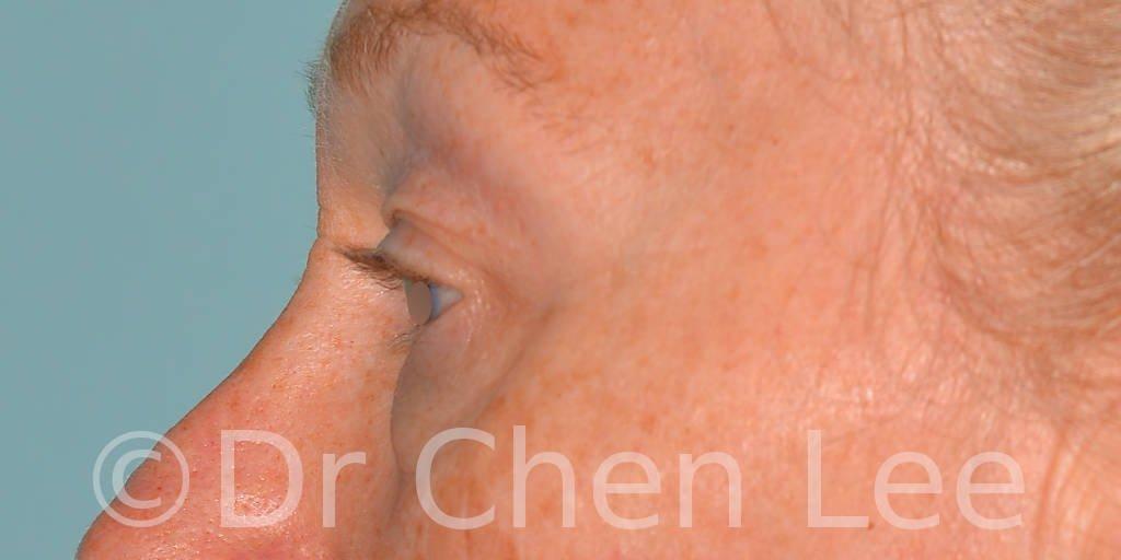 Blepharoplasty before after eyelid surgery left side photo #09