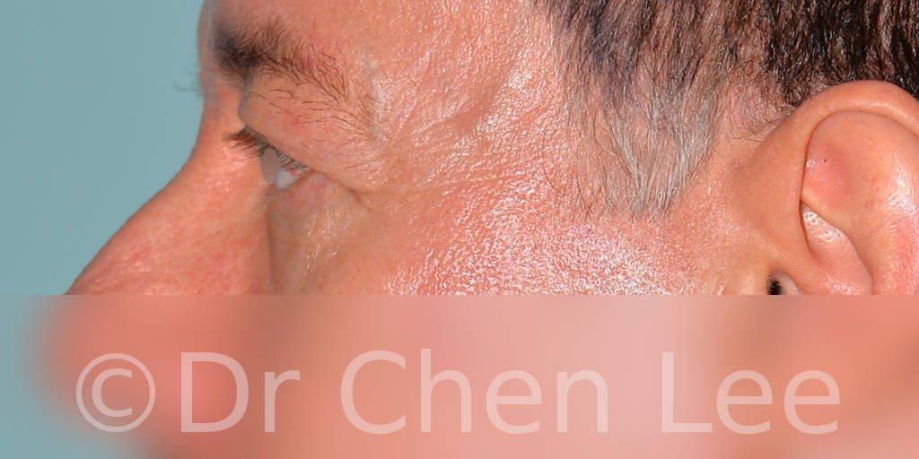 Blepharoplasty before after eyelid surgery left side photo #06