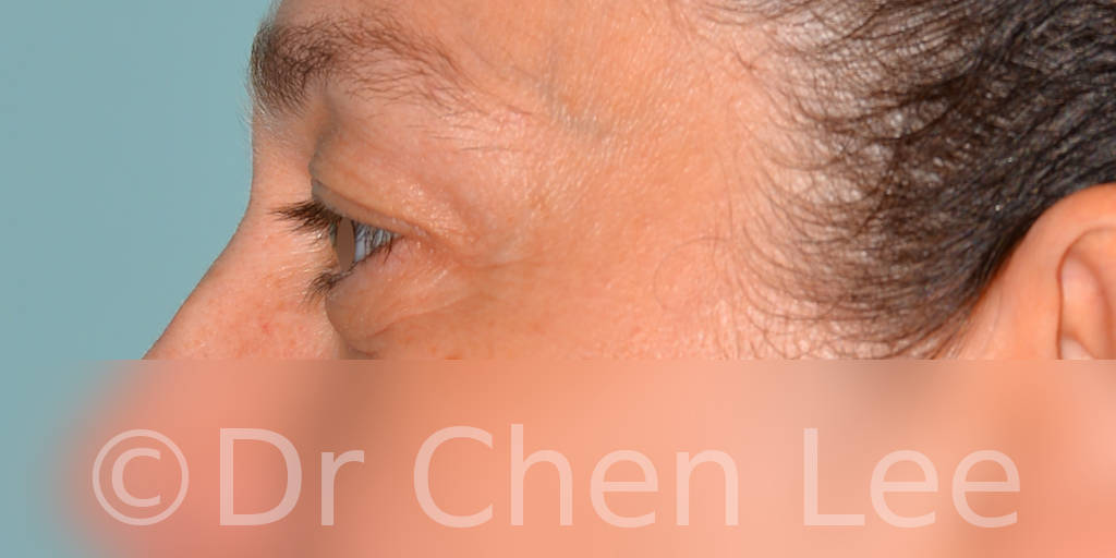 Blepharoplasty before after eyelid surgery left side photo #11