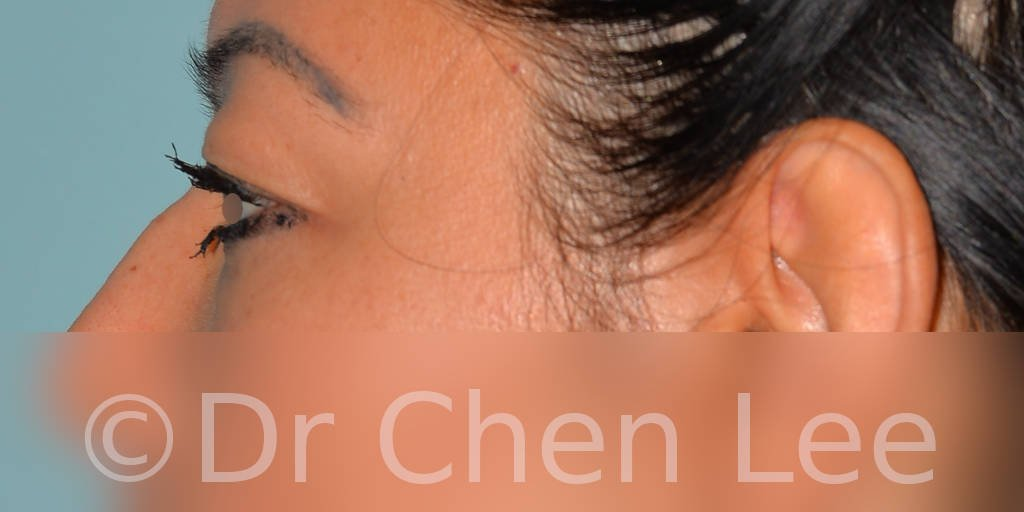 Blepharoplasty before after eyelid surgery left side photo #10
