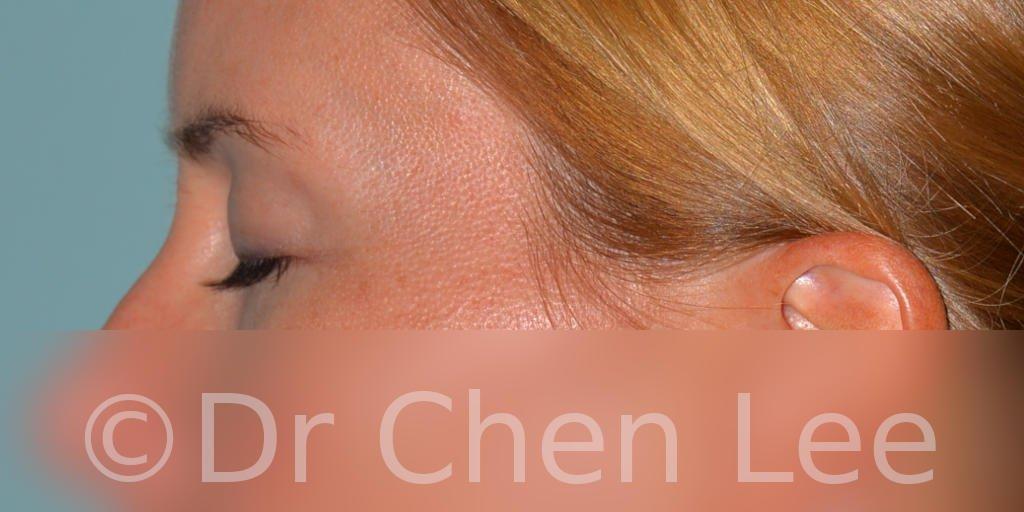 Blepharoplasty before after eyelid surgery left side closed photo #02