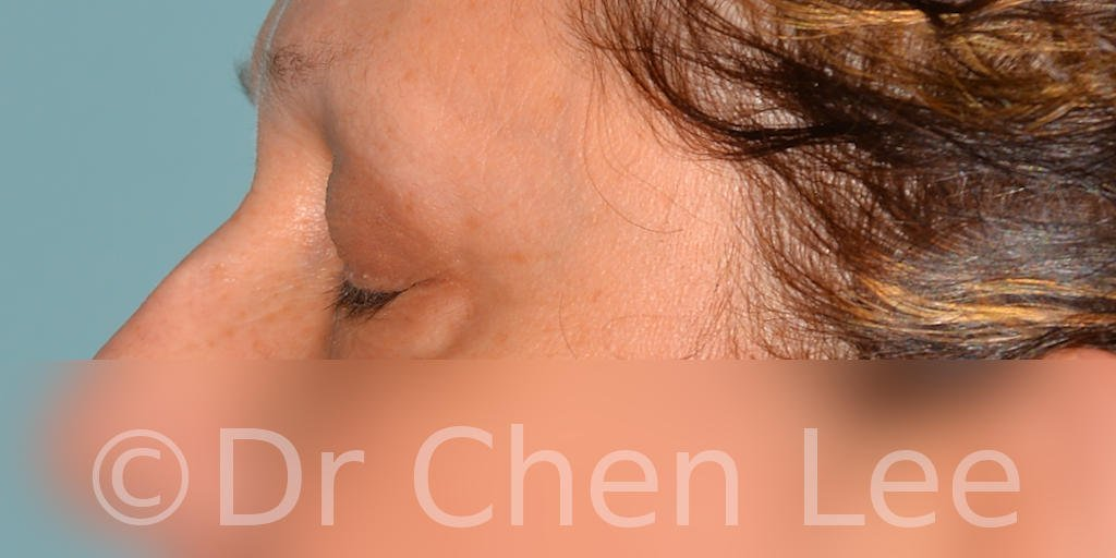 Blepharoplasty before after eyelid surgery left side closed photo #08
