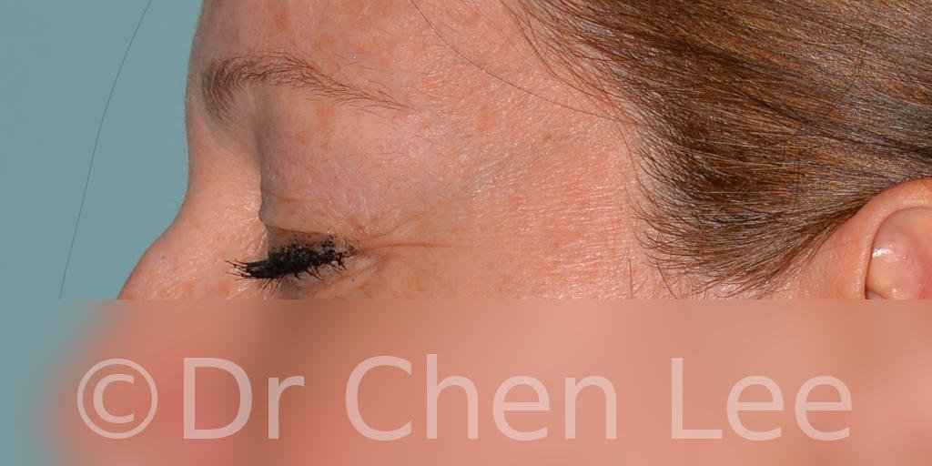 Blepharoplasty before after eyelid surgery left side closed photo #04