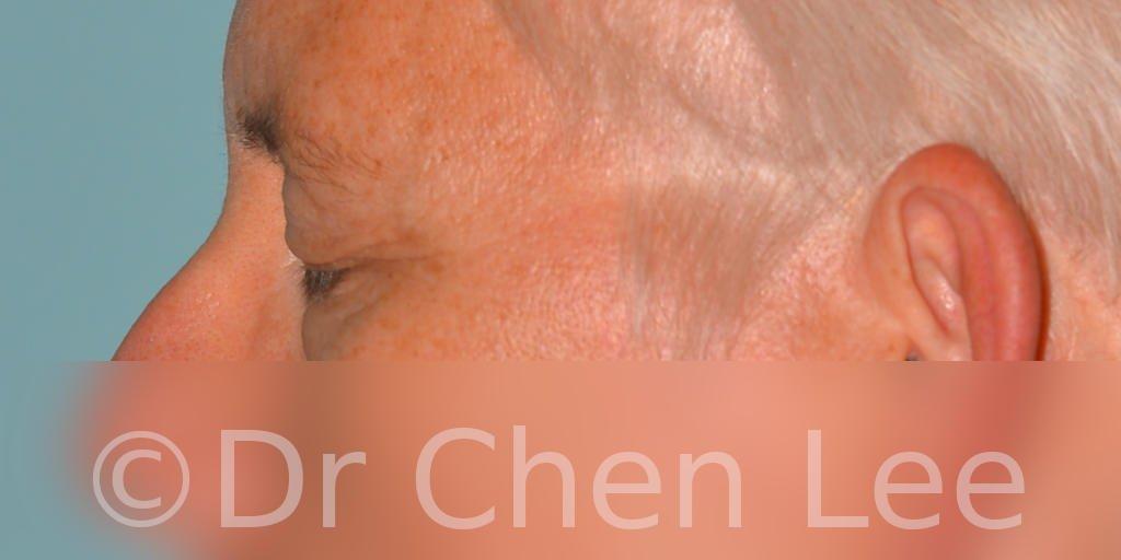 Blepharoplasty before after eyelid surgery left side closed photo #03