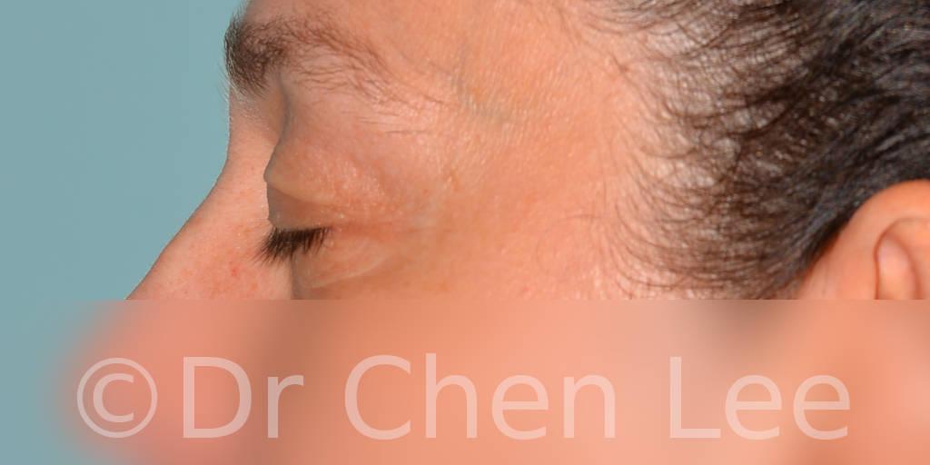 Blepharoplasty before after eyelid surgery left side closed photo #11