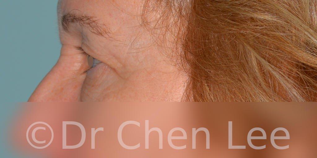 Blepharoplasty before after eyelid surgery left side photo #07