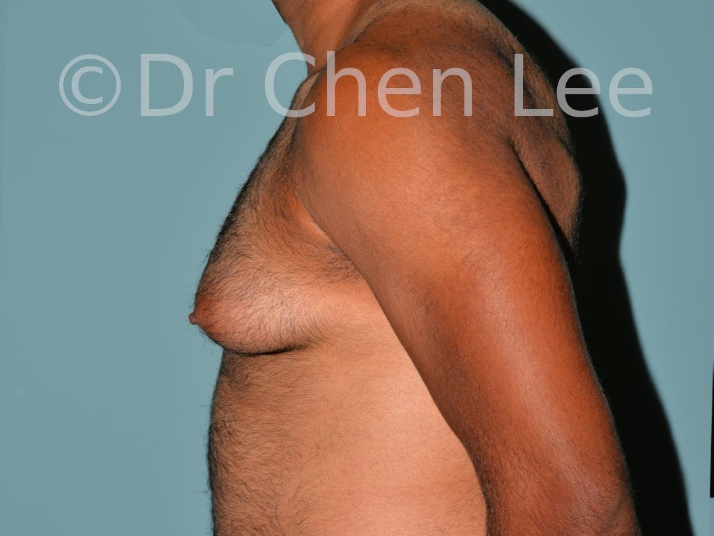 Gynecomastia surgery before after male breast reduction left side view photo #02