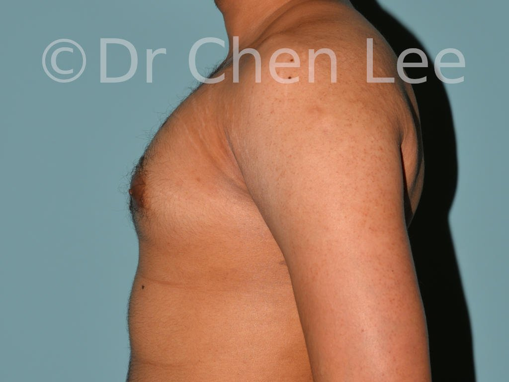 Gynecomastia surgery before after male breast reduction left side photo #06