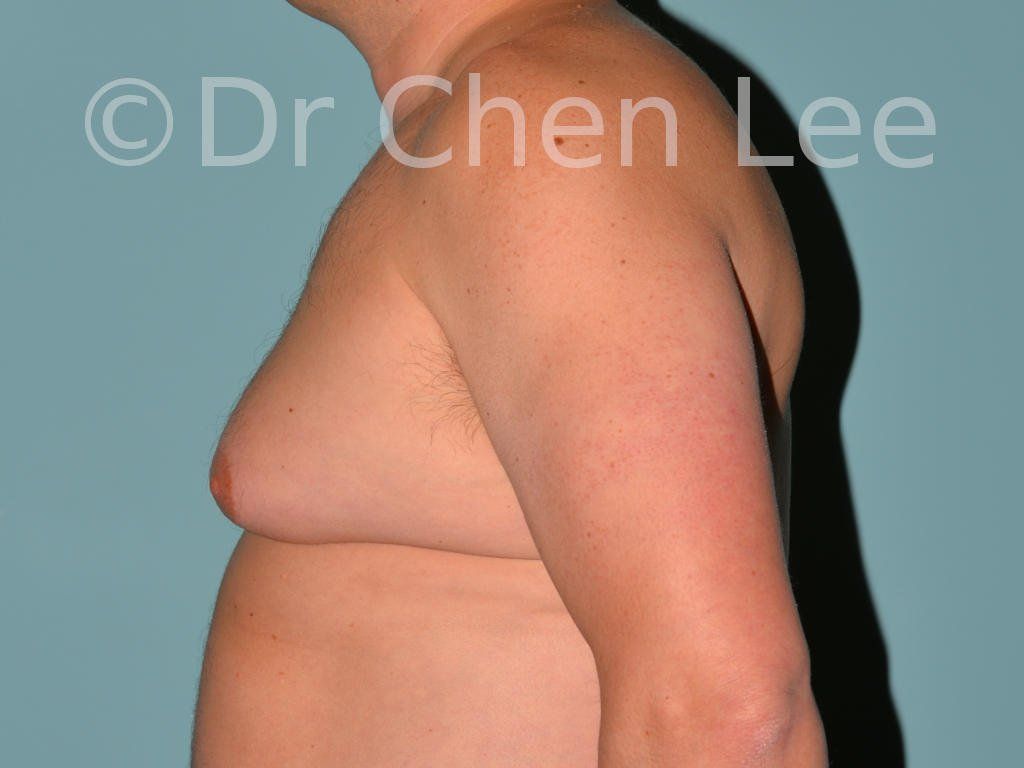 Gynecomastia surgery before after male breast reduction left side photo #13