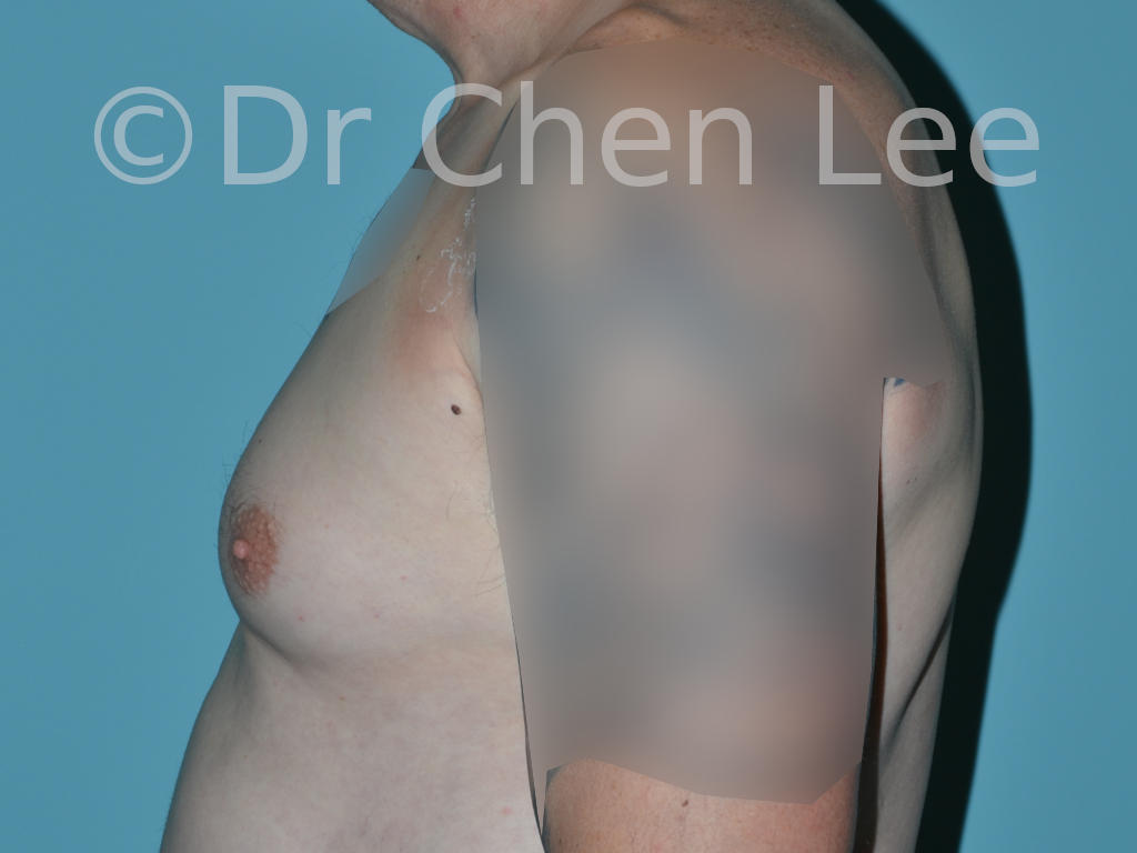 Gynecomastia surgery before after male breast reduction left side photo #12