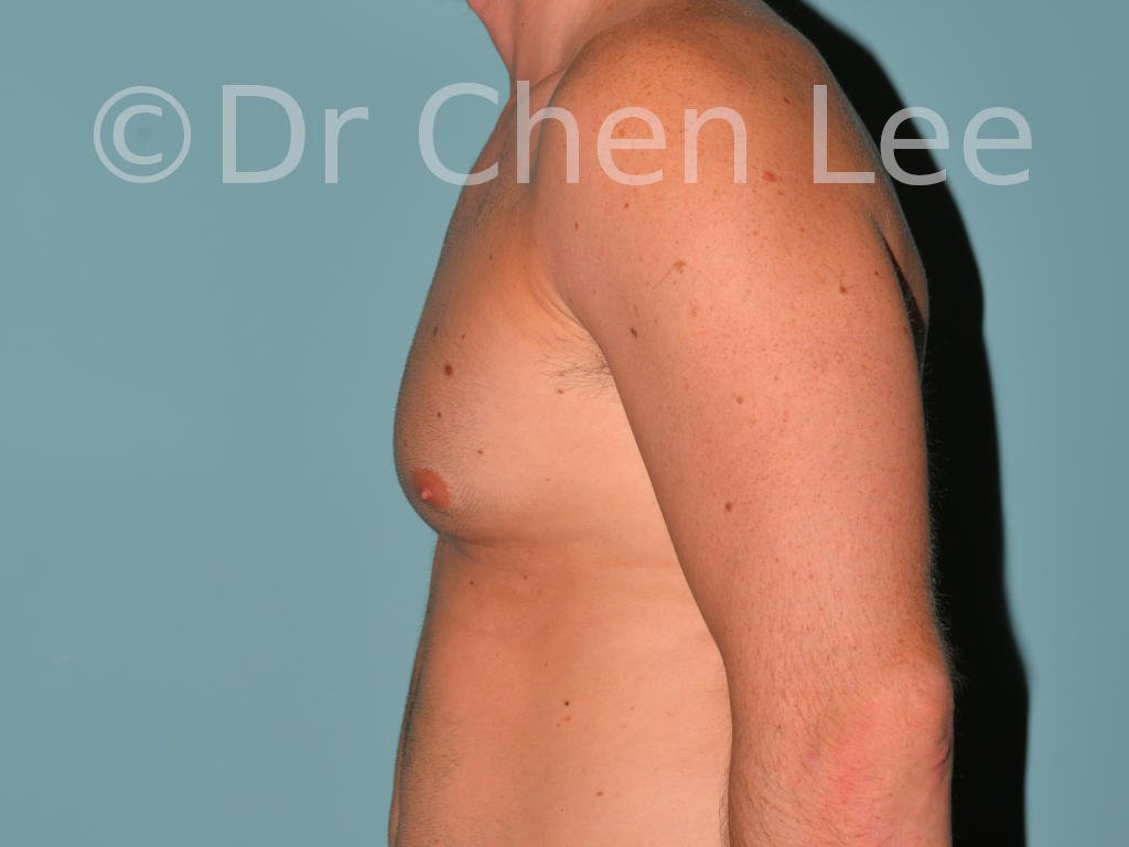 Gynecomastia surgery before after male breast reduction left side photo #07