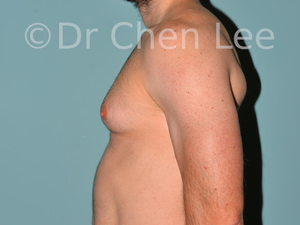 Gynecomastia surgery before after male breast reduction left side photo #04
