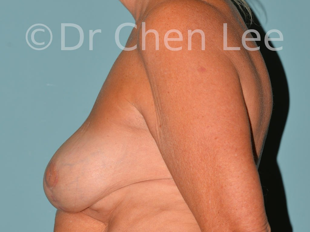 Inverted nipple surgery before after left side photo #11