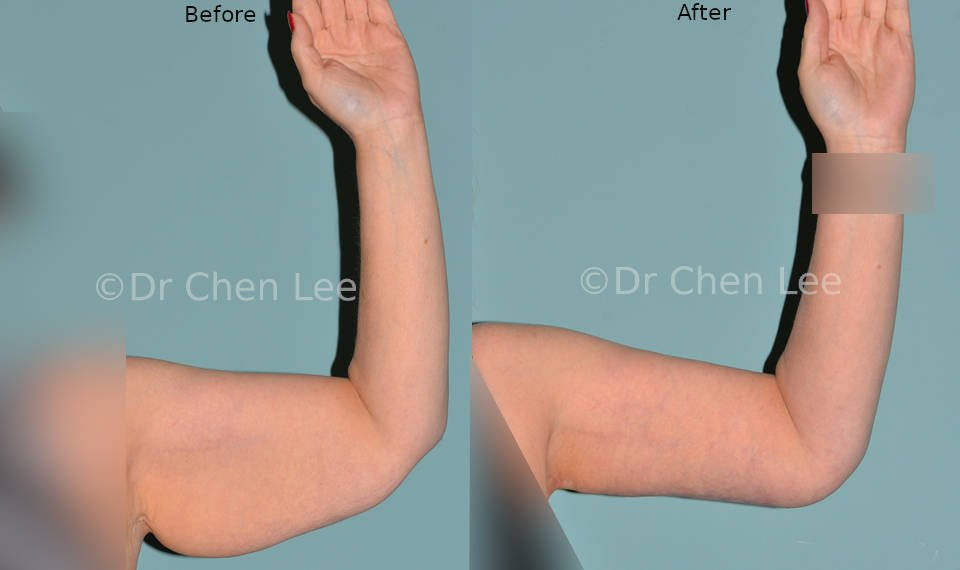 Brachioplasty before after arm lift left front photo #03