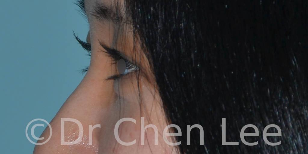 Asian blepharoplasty before after eyelid surgery left side photo #01