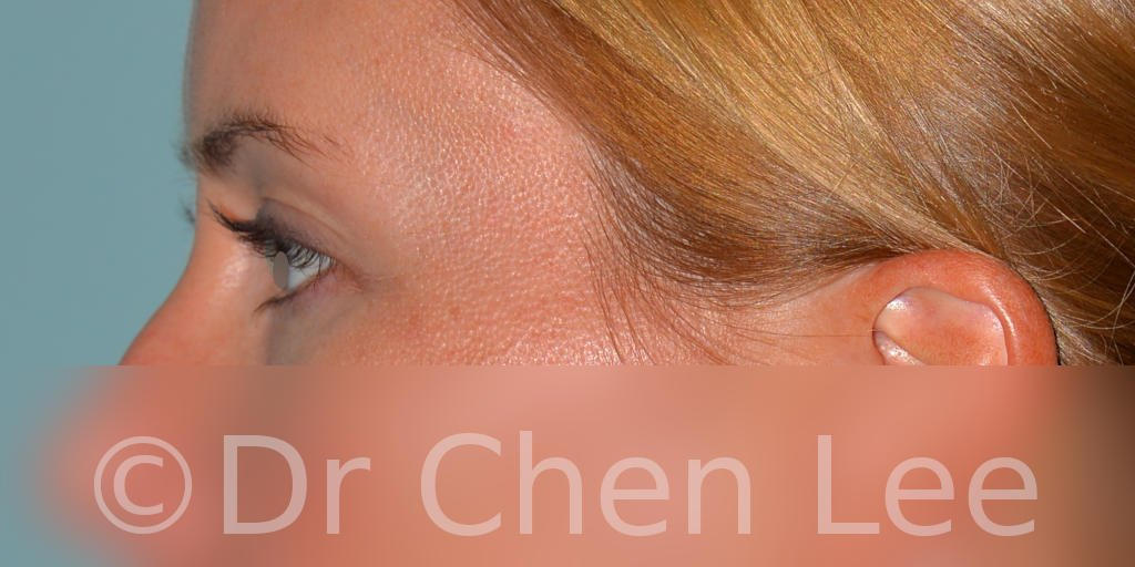 Blepharoplasty before after eyelid surgery left side photo #02
