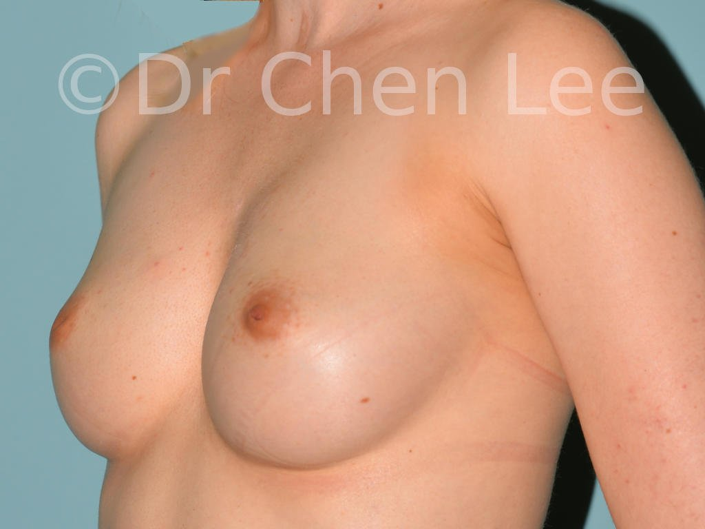 Inverted nipple surgery before after left oblique photo #05