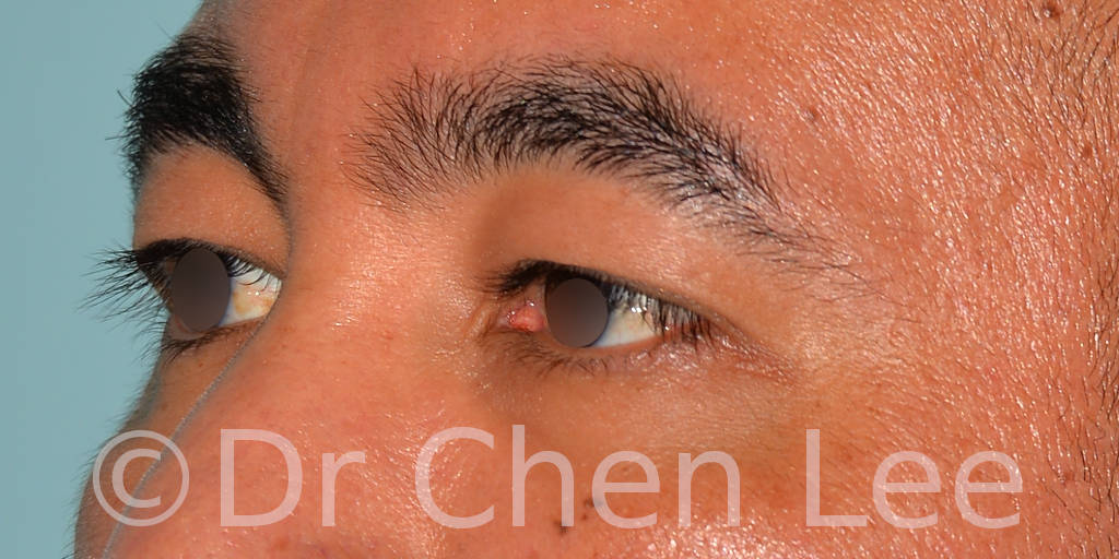 Asian blepharoplasty before after eyelid surgery left side photo #02