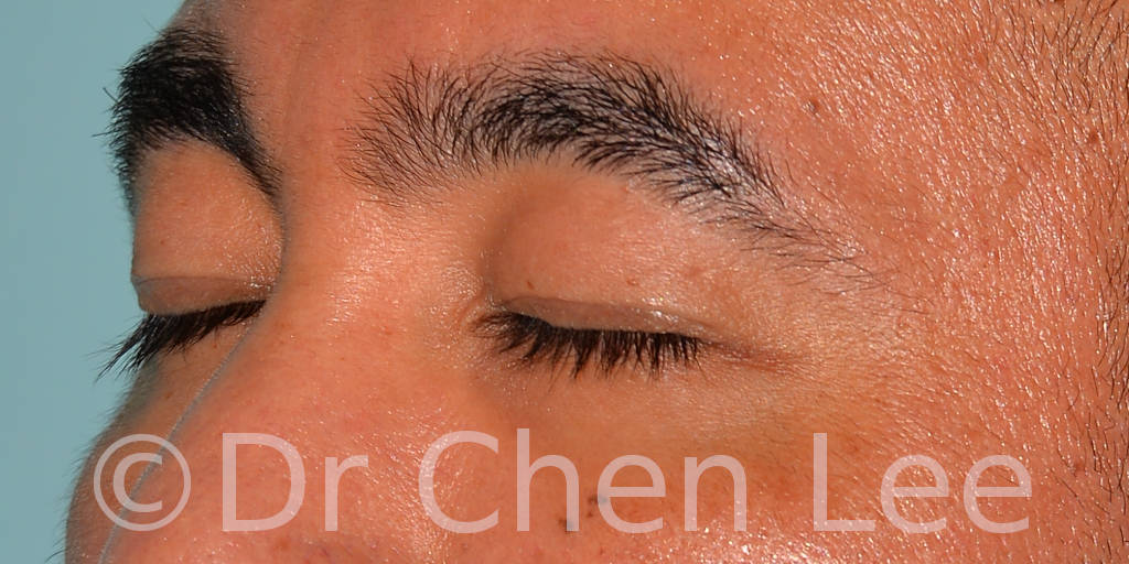 Asian blepharoplasty before after eyelid surgery left side closed photo #02