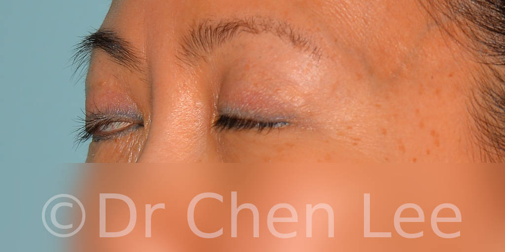 Asian blepharoplasty before after eyelid surgery left side closed photo #05