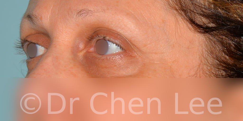 Blepharoplasty before after eyelid surgery left oblique photo #08