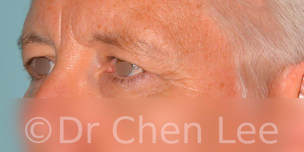 Blepharoplasty before after eyelid surgery left oblique photo #03
