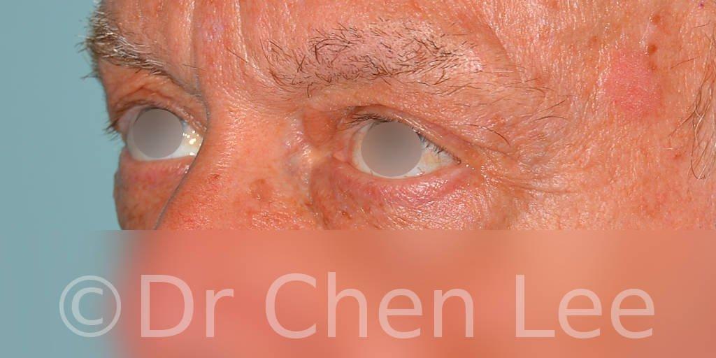 Blepharoplasty before after eyelid surgery left oblique photo #12