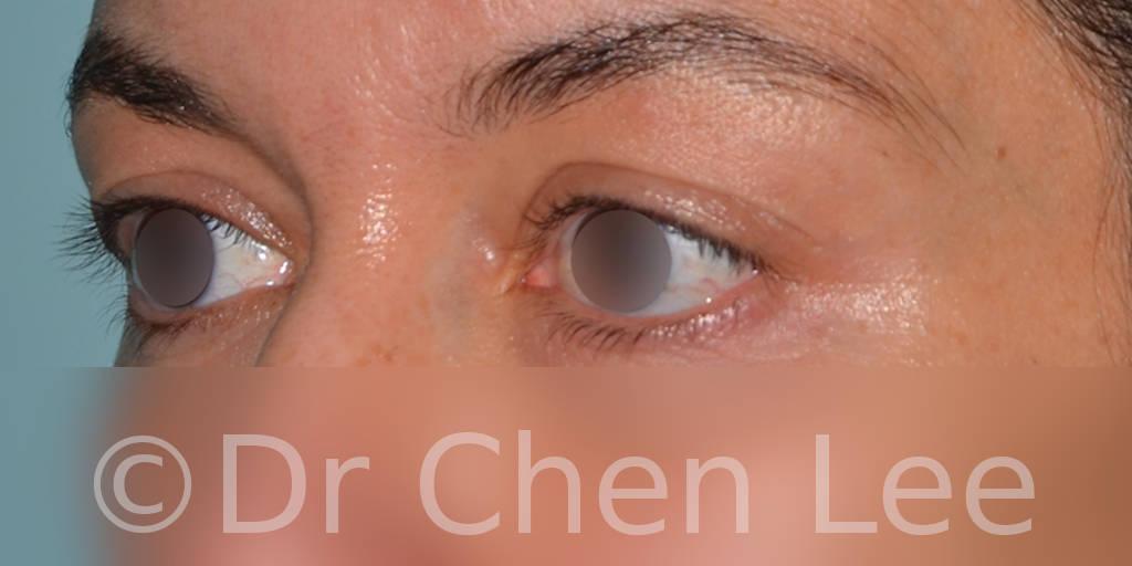 Blepharoplasty before after eyelid surgery left oblique photo #01