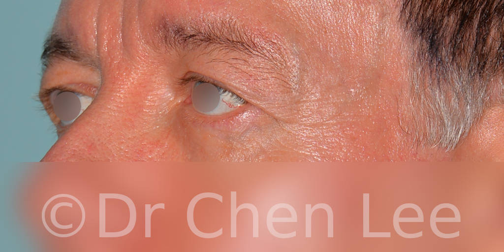 Blepharoplasty before after eyelid surgery left oblique photo #06