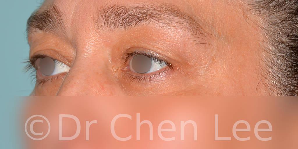 Blepharoplasty before after eyelid surgery left oblique photo #11