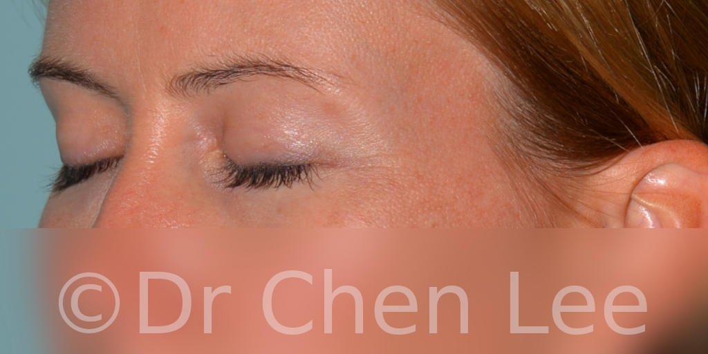 Blepharoplasty before after eyelid surgery left oblique closed photo #02