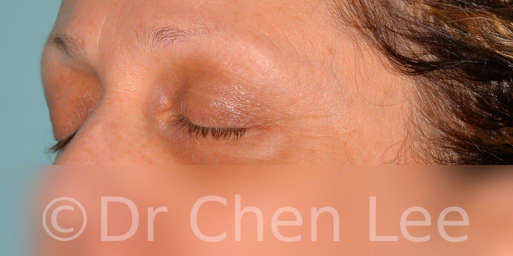 Blepharoplasty before after eyelid surgery left oblique closed photo #08