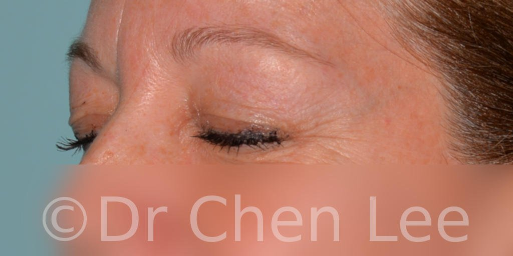 Blepharoplasty before after eyelid surgery left oblique closed photo #04
