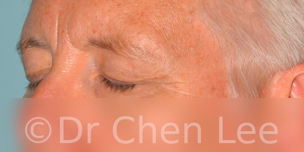 Blepharoplasty before after eyelid surgery left oblique closed photo #03