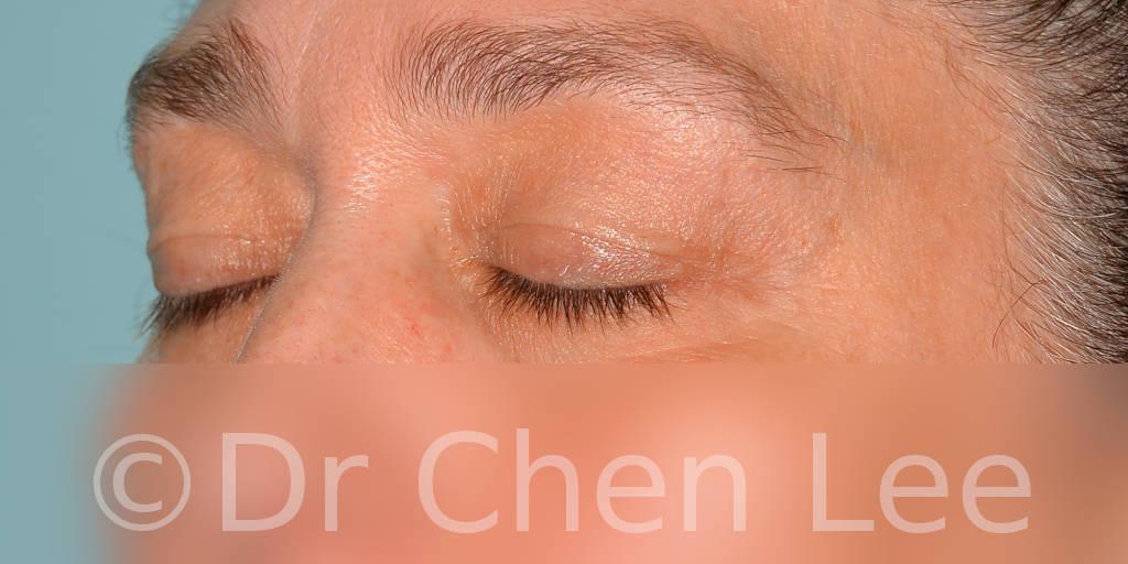 Blepharoplasty before after eyelid surgery left oblique closed photo #11