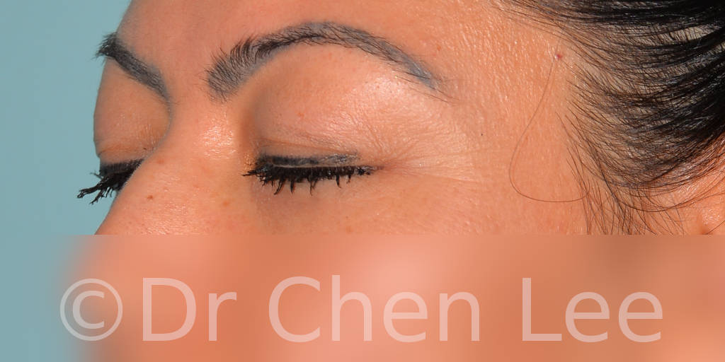 Blepharoplasty before after eyelid surgery left oblique closed photo #10