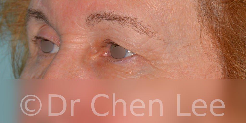 Blepharoplasty before after eyelid surgery left oblique photo #07