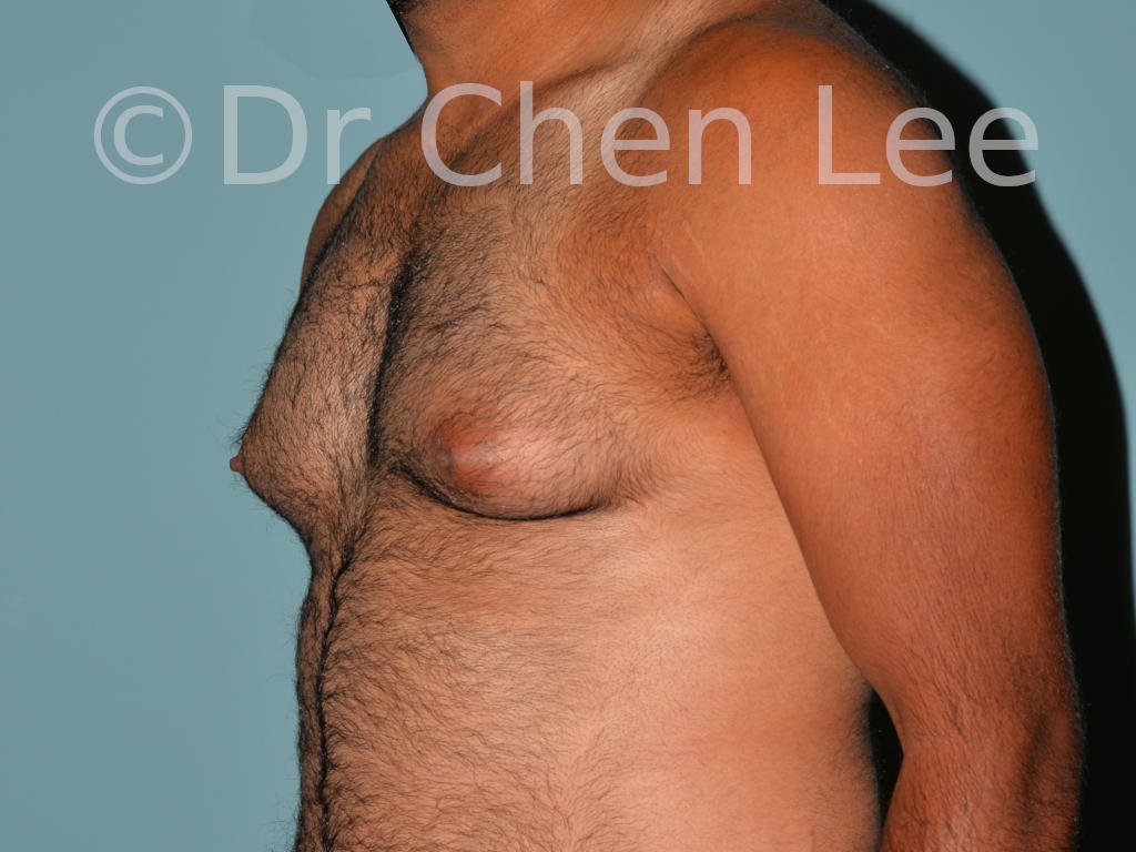 Gynecomastia surgery before after male breast reduction left oblique view photo #02