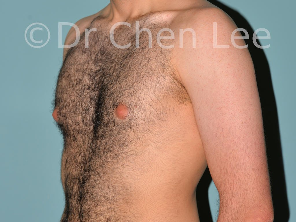 Gynecomastia surgery before after male breast reduction left oblique photo #10