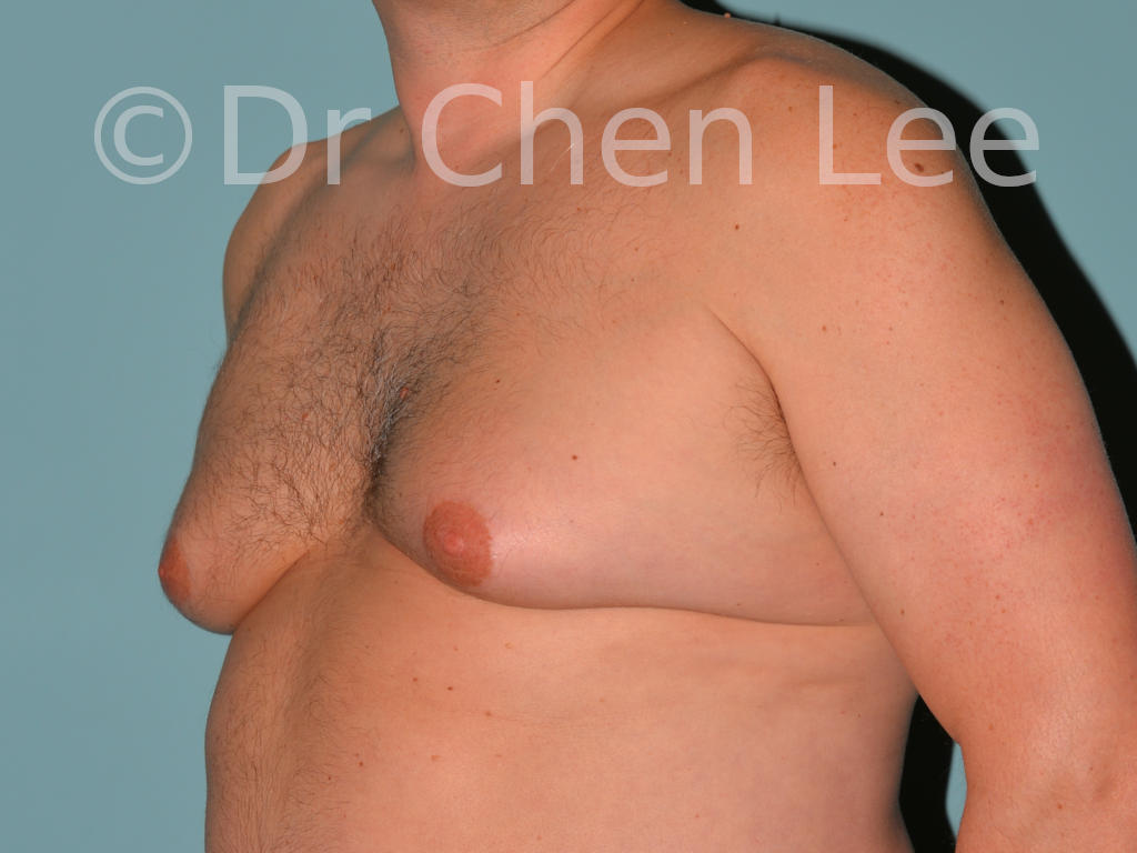 Gynecomastia surgery before after male breast reduction left oblique photo #13