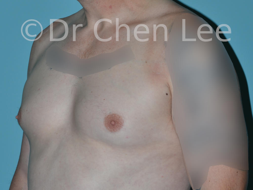 Gynecomastia surgery before after male breast reduction left oblique photo #12