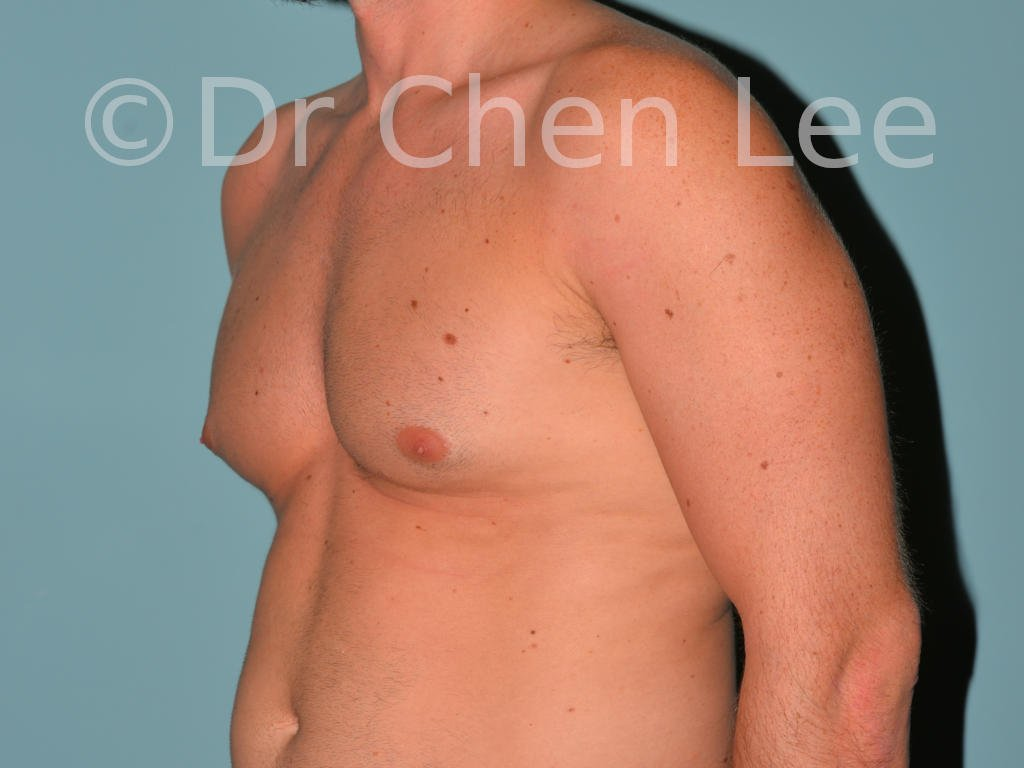 Gynecomastia surgery before after male breast reduction left oblique photo #07
