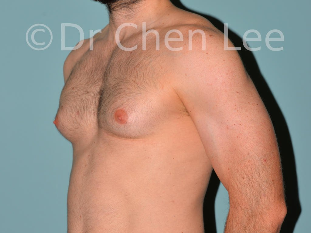 Gynecomastia surgery before after male breast reduction left oblique photo #04