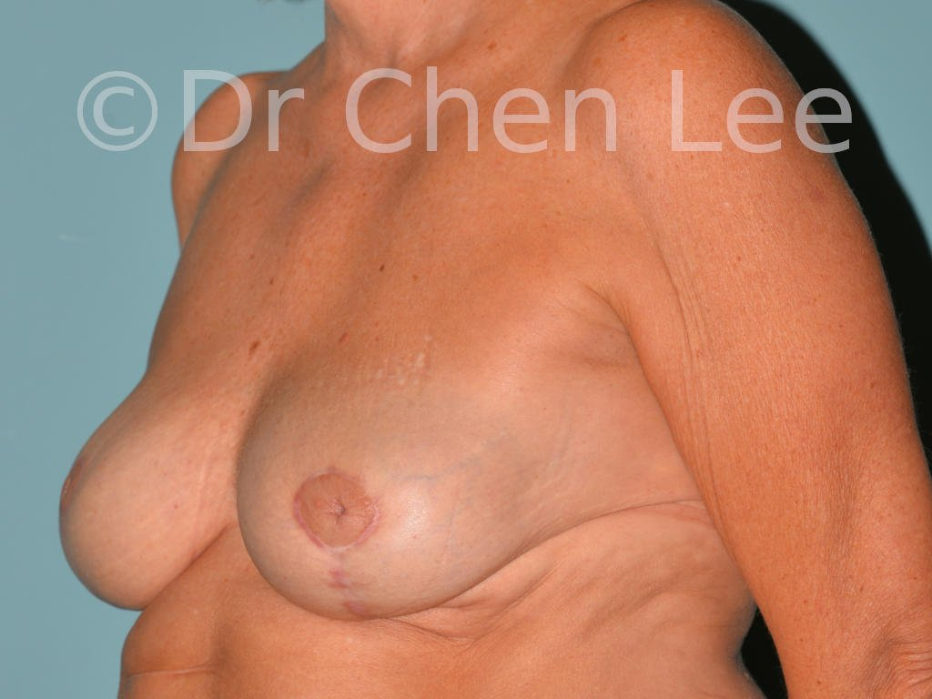 Inverted nipple surgery before after left oblique photo #11